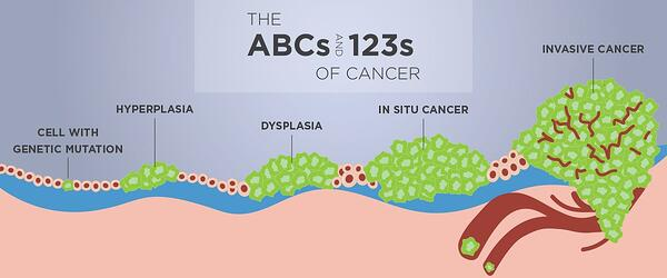 2019-cancer-stages-blog-graphics-header-2