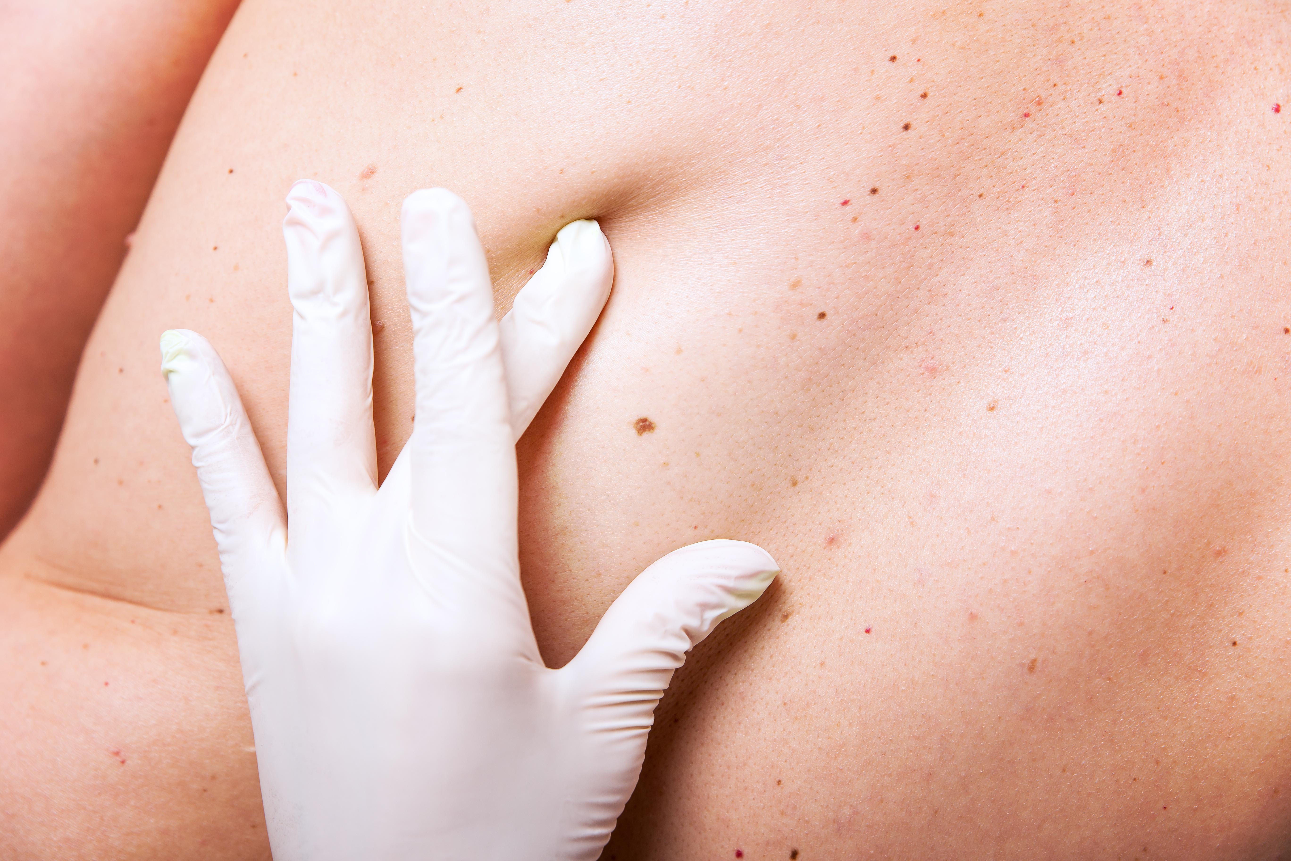 Advanced Dermatology to Host Skin Cancer Screening
