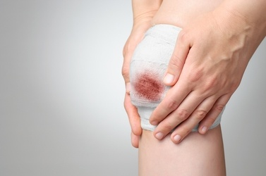 4 Signs a Wound Requires Additional Care