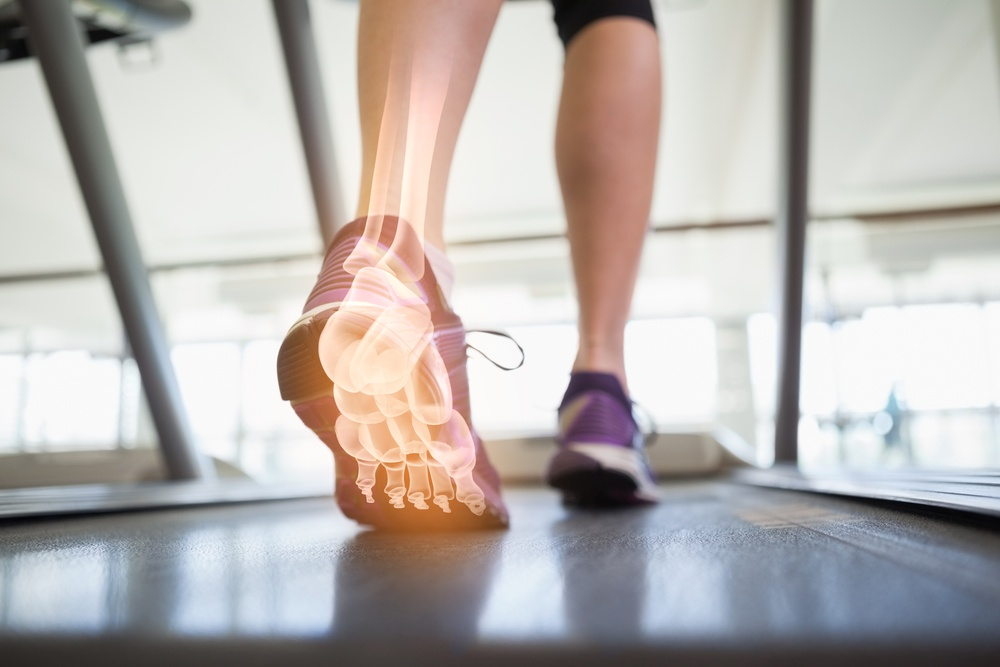 Plantar Fasciitis: A Common Source of Heel Pain