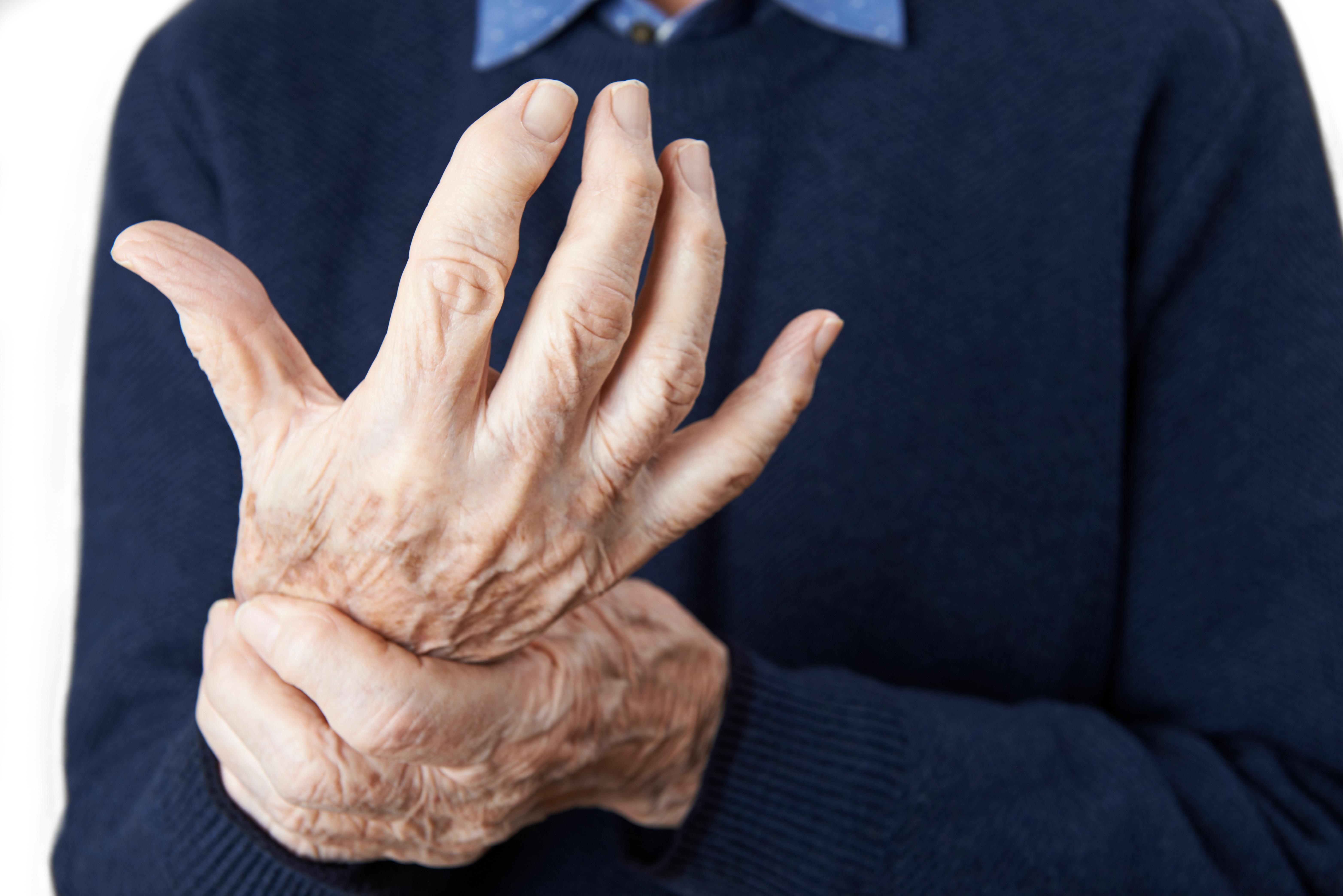 The Most Common Arthritis Risk Factors