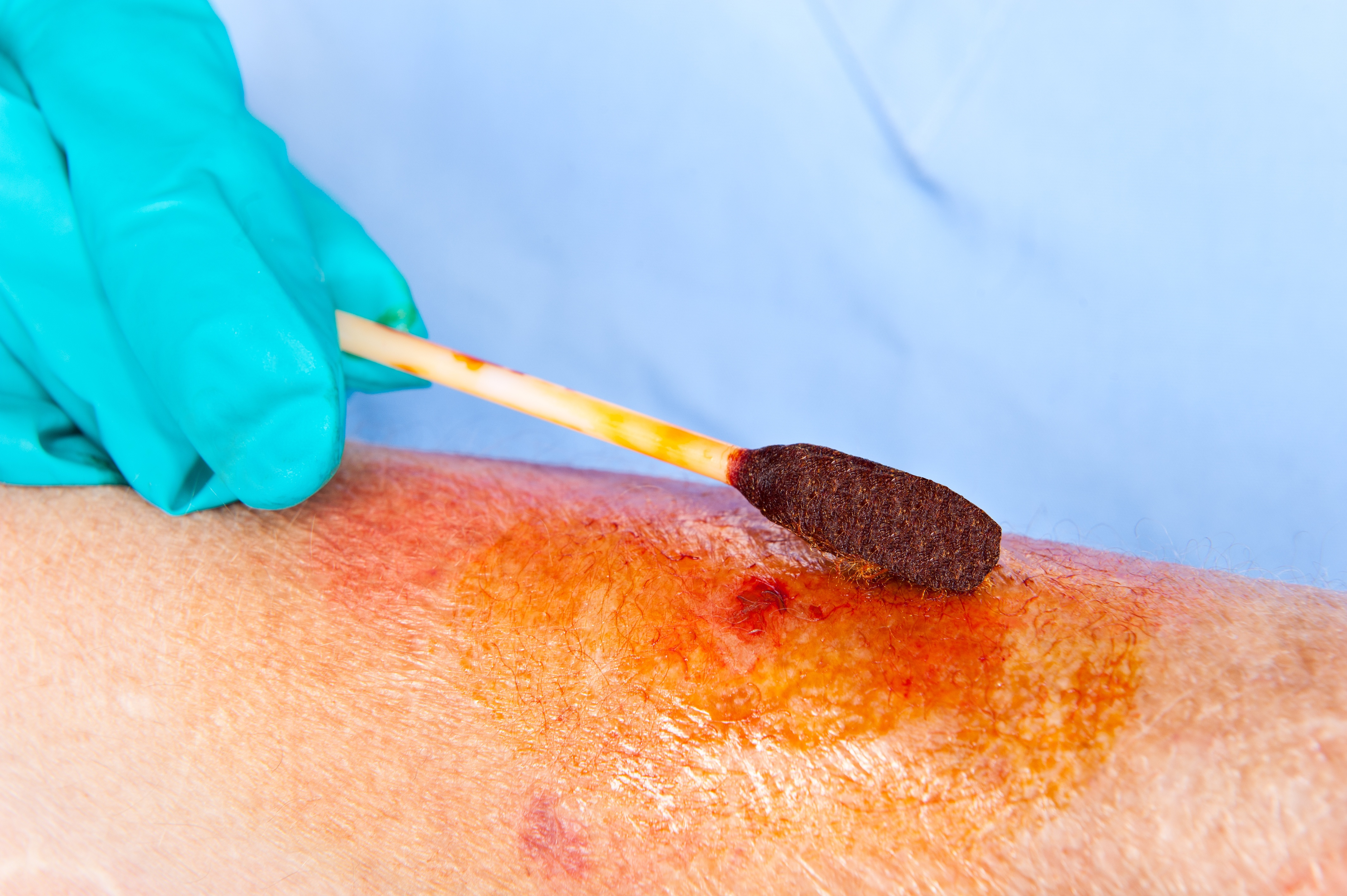 Healing Wounds from Radiation Therapy